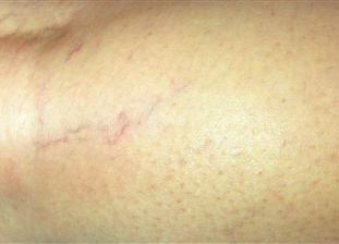 Laser Spider Vein Removal After