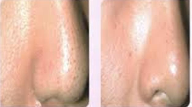 Enlarged Facial Pores Treatment at Anti Aging Clinic Toronto