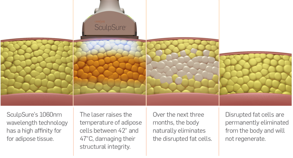 SculpSure: Fat Reduction Procedure - How it works