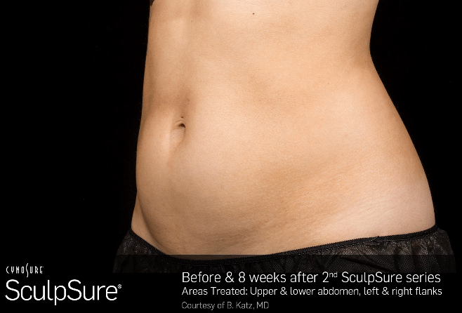 sculpsure treatment before-after