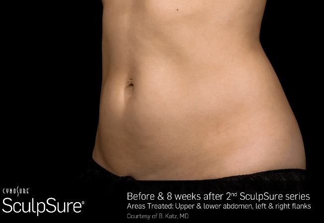 sculpsure treatment before-after1