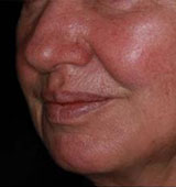 Wrinkle Reduction After