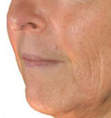 Wrinkle Reduction Before