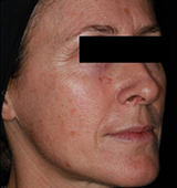 Before Non Surgical Face Lift