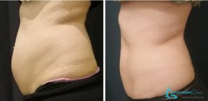 fat reduction,
