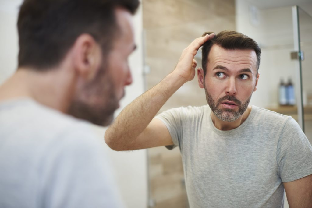 Early Signs of Balding in Men